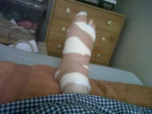 foot bandage after bunion surgery