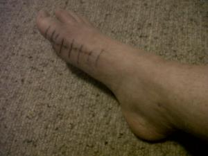 photo of scar on right foot after bunion surgery