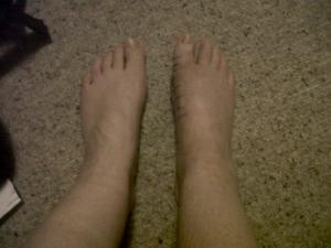 photo of two feet after bunion surgery on right foot